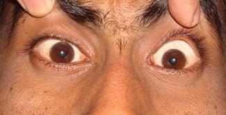 Monocular esotropia with A pattern - RightDiagnosis.com